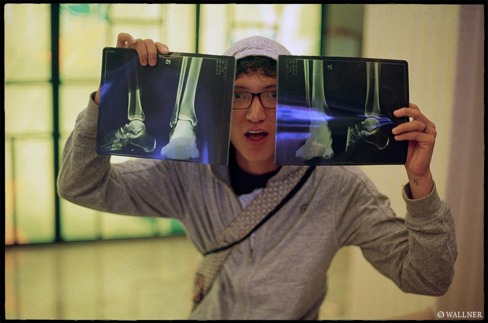 35mmPatrikWallner_Kunming_TrasherBrokenFootLOWQ